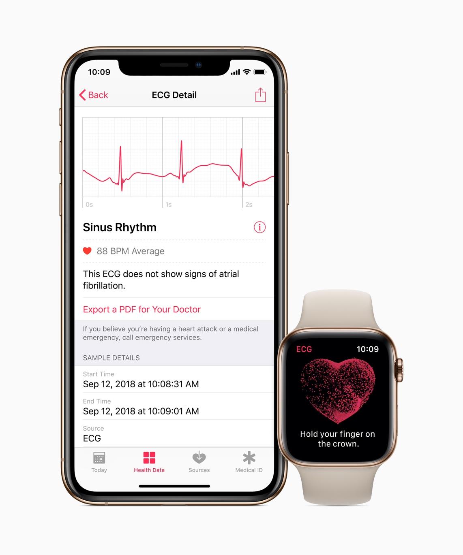 ECG on Apple Watch Series 4
